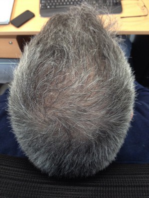 Mesotherapy Hair treatment Afterphoto