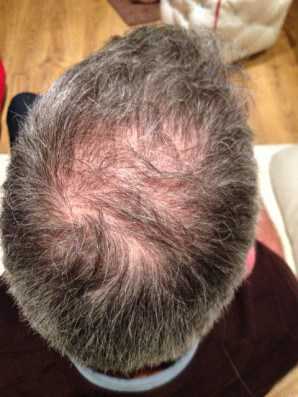 Mesotherapy Hair treatment Before photo
